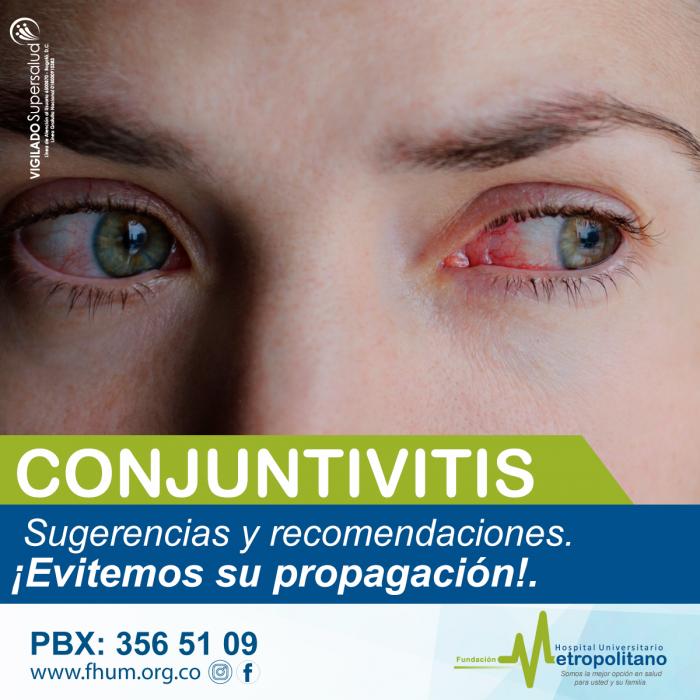 conjuntuivitis-1